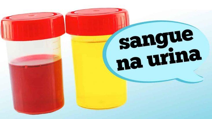 A hematúria macroscópica é o sangue visível na urina. Se isto está ocorrendo com você, quais podem ser os prováveis motivos? Fique atento aos sintomas e sinais de alerta com as informações do urologista Fábio Ortega no vídeo de hoje.